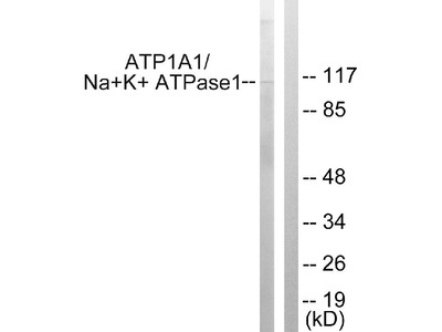 Anti-ATP1 alpha1/Na+K+ ATPase1 Antibody