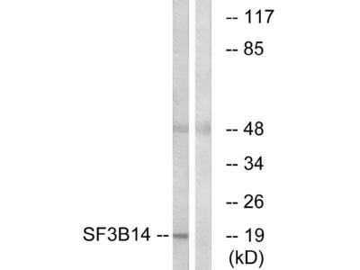 Anti-SF3B14 Antibody