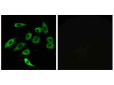 Anti-TAS2R3/T2R3 Antibody