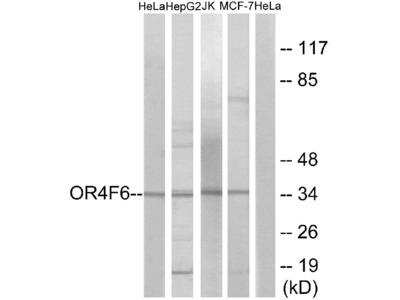Anti-OR4F6 Antibody