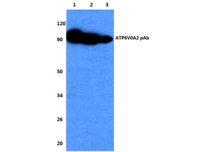 Anti-ATP6V0A2 Antibody
