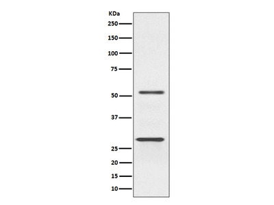Anti-Parkin Rabbit Monoclonal Antibody