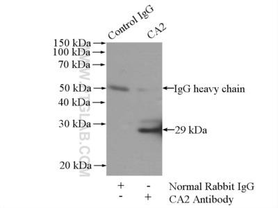 CA2 antibody