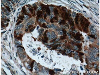 UBE2C antibody