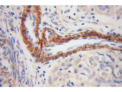 TPM4 antibody
