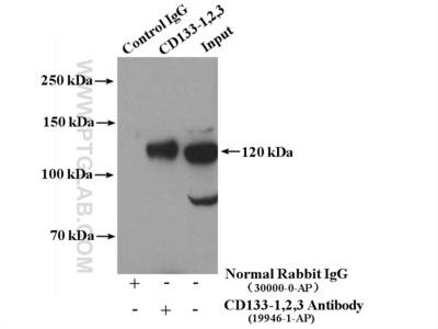 CD133-1,2 antibody