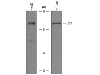 Carboxylesterase 2 /CES2 Antibody