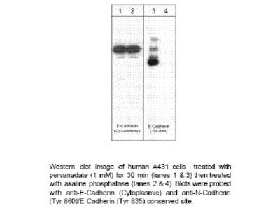 E-Cadherin (Cytoplasmic)