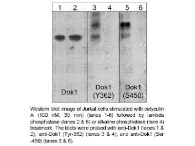 Dok1 (Tyr-362), phospho-specific