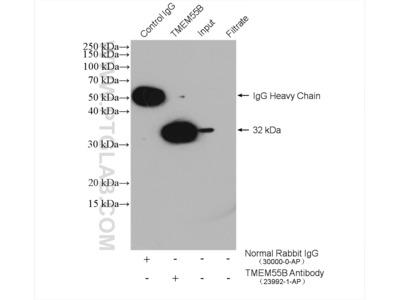 TMEM55B antibody