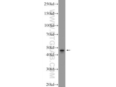 TBCEL antibody