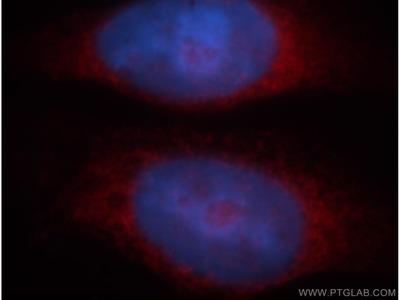BAG1 antibody