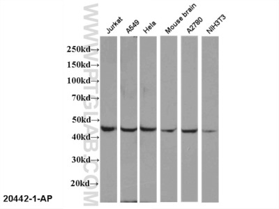 EDG2 antibody