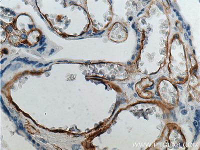 FCGR2B / CD32b antibody