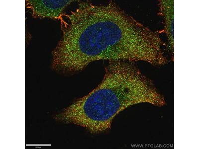LAMP1 antibody