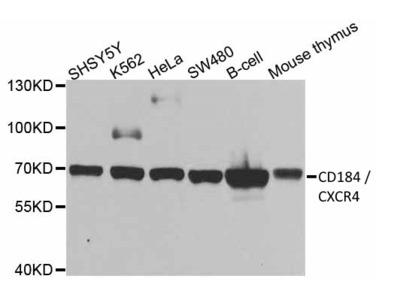 RABBIT ANTI CD184 / CXCR4