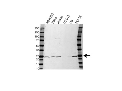 RAB11A ANTIBODY WITH CONTROL LYSATE