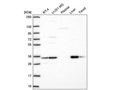 TMEM183A Antibody