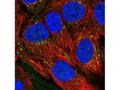 CXCL16 Antibody
