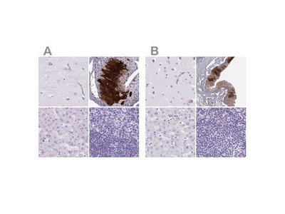 Cytokeratin 12 Antibody