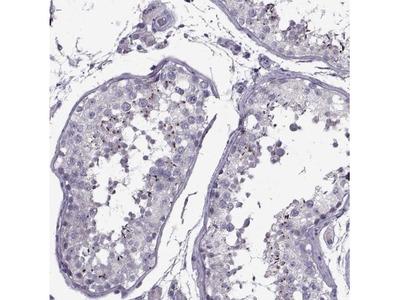 PP2D1 Antibody