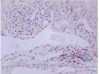 CD3 Antibody (RM0027-3B19)
