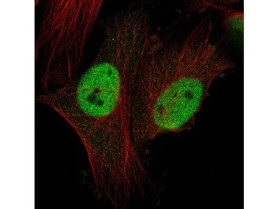 CTDSPL2 Antibody