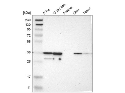 CAPZA2 Antibody