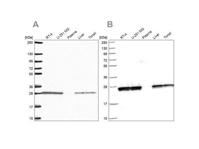 Triosephosphate isomerase Antibody
