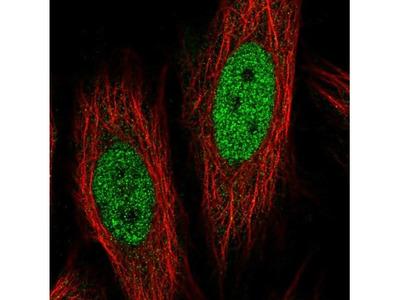 Collagen XII alpha1 Antibody