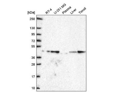 GDF-11 /BMP-11 Antibody