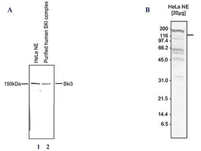 Rabbit polyclonal TTC37 Antibody