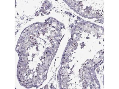PP2D1 Polyclonal Antibody