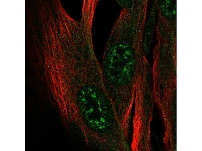 ZCWPW2 Polyclonal Antibody