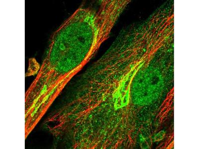 ENPP2 Polyclonal Antibody