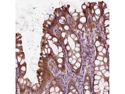 SLC25A46 Polyclonal Antibody