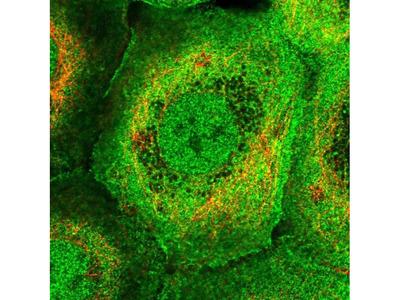 PLEKHG3 Polyclonal Antibody