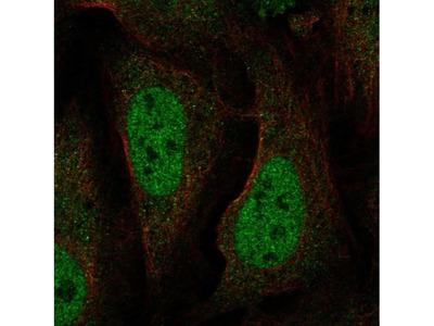 BAAT1 Polyclonal Antibody
