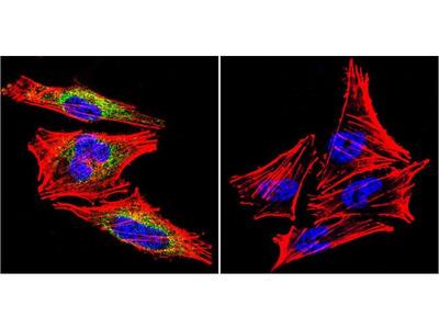 Prolactin Receptor Monoclonal Antibody (U5)