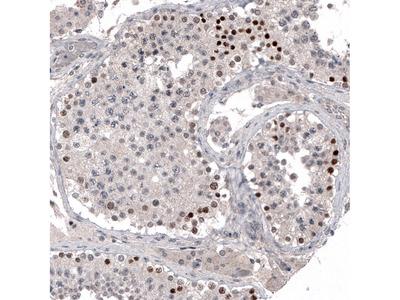 Anti-PRAME Antibody