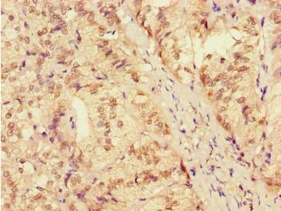 ZRANB3 antibody