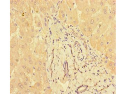 PPM1H antibody