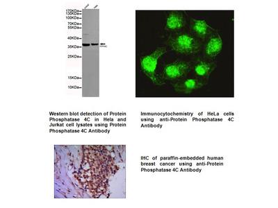 Anti-PPP4C Antibody (2F11-D10-G4)