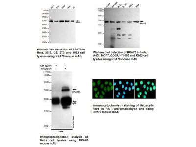 Anti-RPA70 Antibody (8C3-D12-H10)