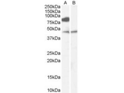 Goat anti-ZDHHC8 Antibody