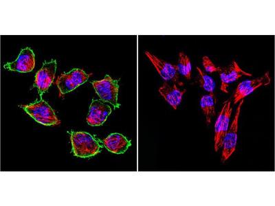 Prolactin Receptor Monoclonal Antibody (T6)