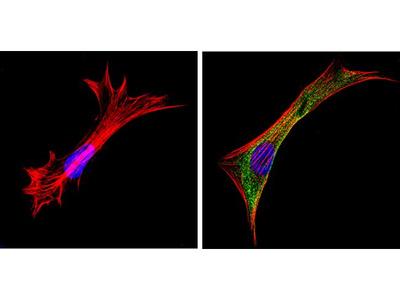 Galectin 3 Monoclonal Antibody (A3A12)