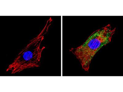 COPII Polyclonal Antibody