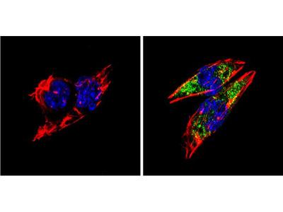 BACE1 Polyclonal Antibody