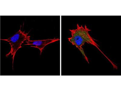 Endostatin Polyclonal Antibody